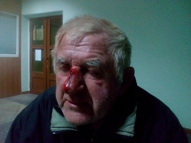 У центрі Черкас жорстоко побили літнього чоловіка